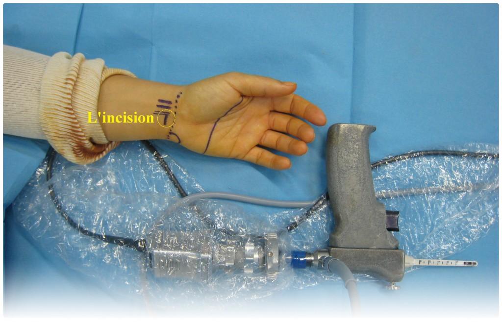 La chirurgie du canal carpien sous vidéo chirurgie